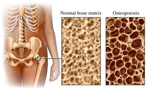 Acid Zoledronic (Aclasta 5mg -100 ml): Vai trò trong điều trị loãng xương