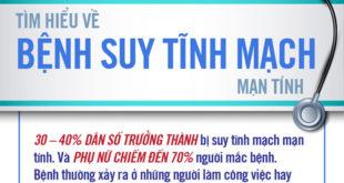 nhung-su-that-bat-ngo-ve-suy-gian-tinh-mach-dieu-tri-suy-gian-tinh-mach--1--1474011315-width500height482