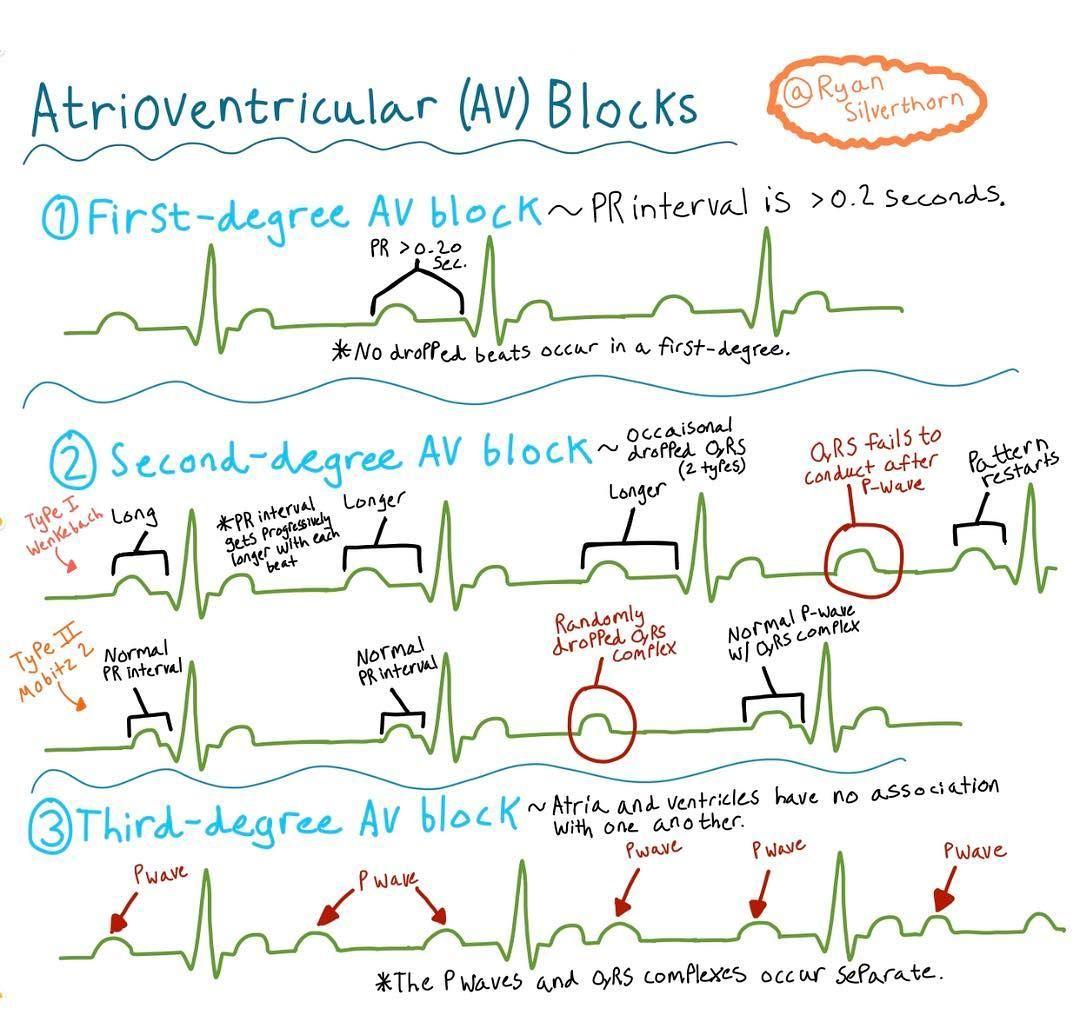 Block nhĩ thất: chẩn đoán và điều trị