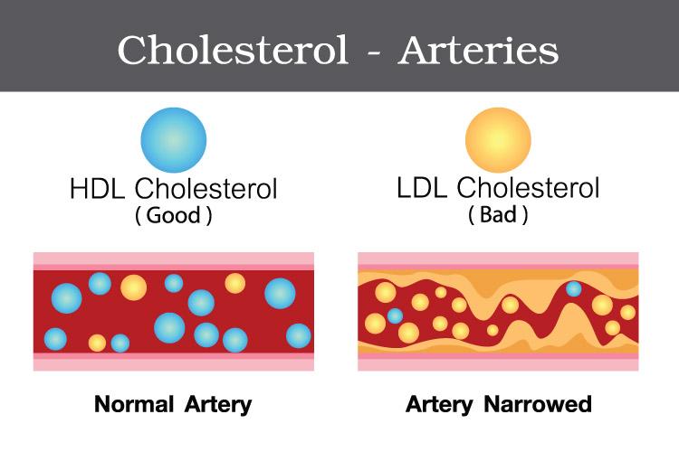 Điều trị tăng Cholesterol LDL